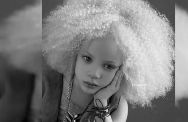 Esta niña está revolucionando el mundo de la moda: sus padres son negros y ella es albina